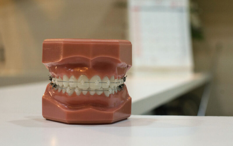 Close up shot of false teeth showing braces attached